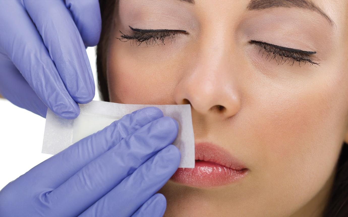 Damenbart Entfernen Rasieren Lasern Wachsen Oder Epilieren